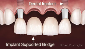 4 unit implant supported bridge