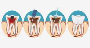 illustration of a root canal, step by step