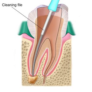 Illustration of a cleaning file used to clean a root canal