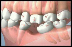 Drifting Teeth